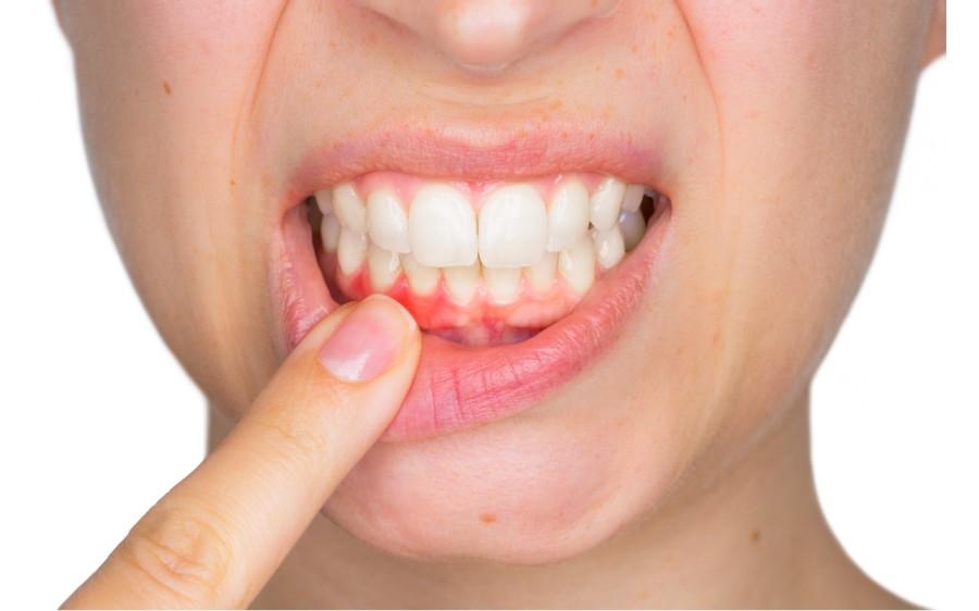 Dureri articulare sângerare gingii